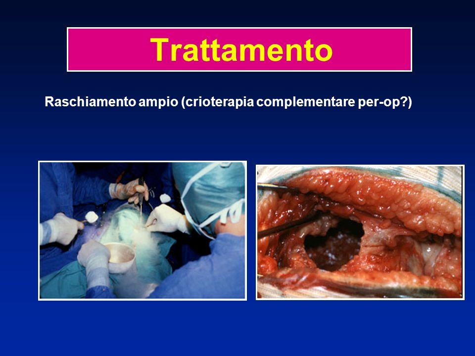 Raschiamento ampio (crioterapia complementare per-op?) Trattamento