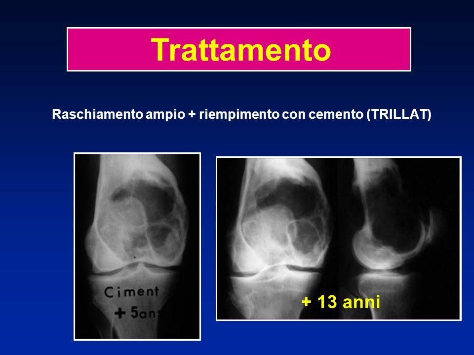 Raschiamento ampio + riempimento con cemento (TRILLAT) + 13 anni Trattamento