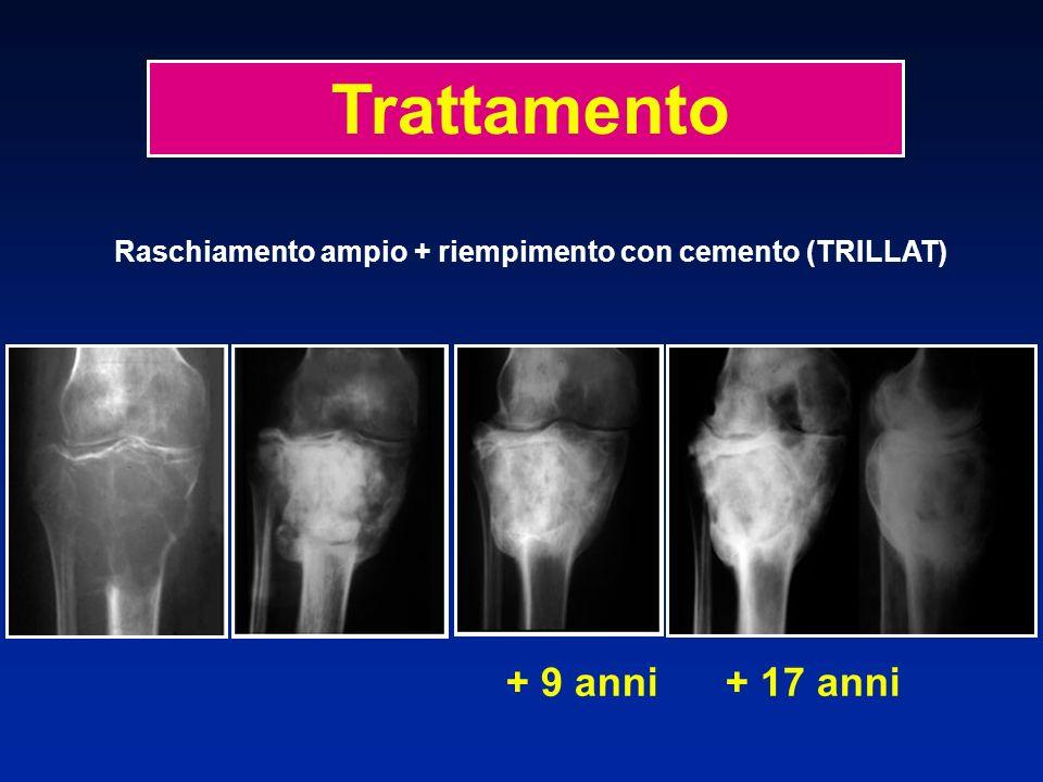 + 9 anni + 17 anni Trattamento Raschiamento ampio + riempimento con cemento (TRILLAT)