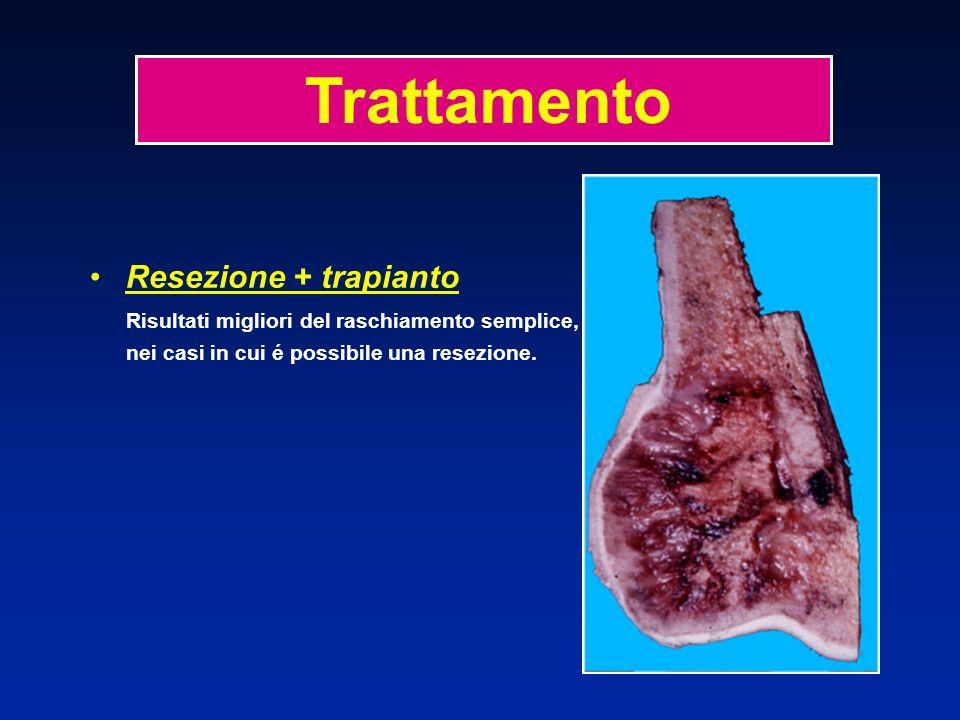Resezione + trapianto Risultati migliori del raschiamento semplice, nei casi in cui é possibile una resezione. Trattamento