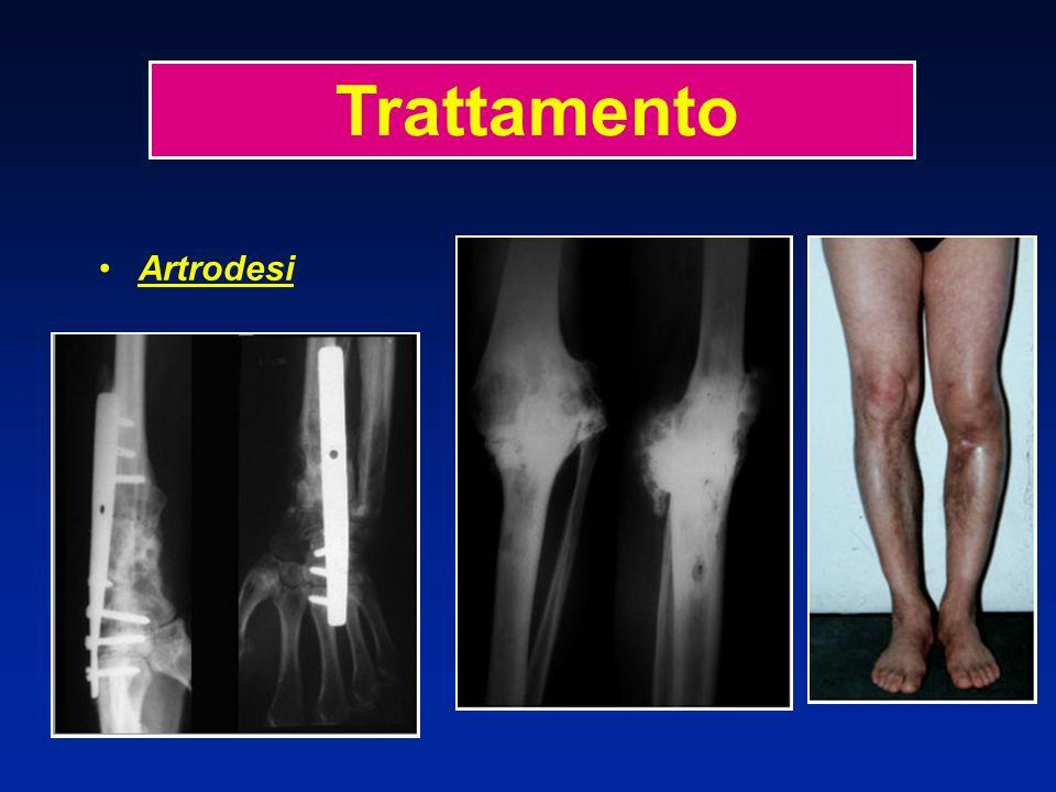 Artrodesi Trattamento