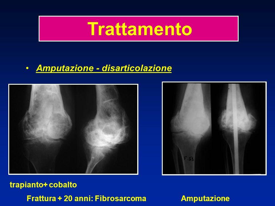 Amputazione - disarticolazione trapianto+ cobalto Frattura + 20 anni: Fibrosarcoma Amputazione Trattamento
