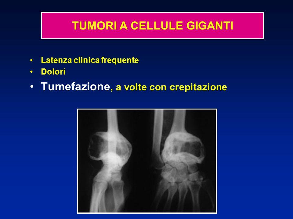 Latenza clinica frequente Dolori Tumefazione, a volte con crepitazione TUMORI A CELLULE GIGANTI