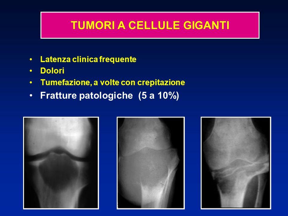 Latenza clinica frequente Dolori Tumefazione, a volte con crepitazione Fratture patologiche (5 a 10%) TUMORI A CELLULE GIGANTI