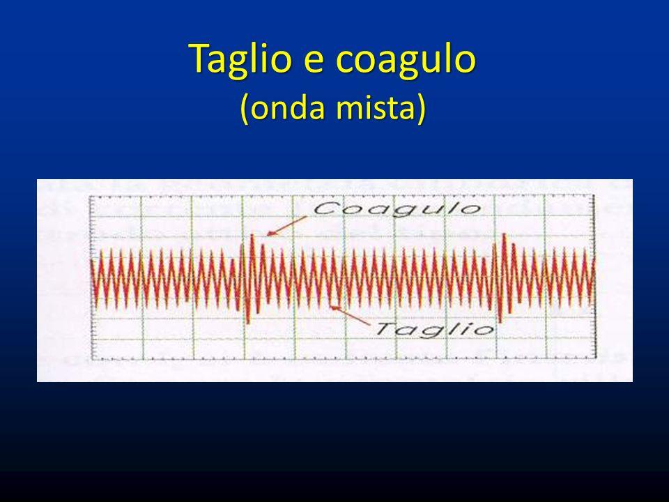 Coagulazione con plasma di Argon Flusso di gas Argon ionizzato che veicola corrente elettrica sulla superficie del tessuto