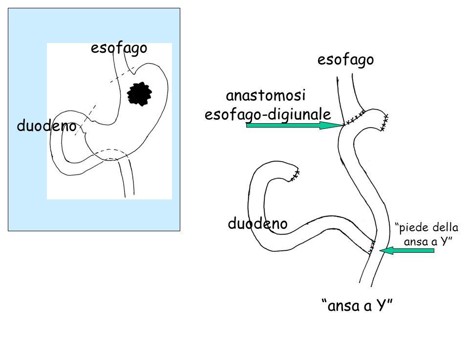 esofago duodeno esofago duodeno ansa a Y anastomosi esofago-digiunale piede della ansa a Y