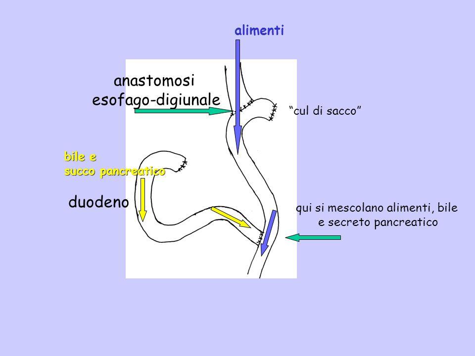 duodeno anastomosi esofago-digiunale qui si mescolano alimenti, bile e secreto pancreatico alimenti bile e succo pancreatico cul di sacco