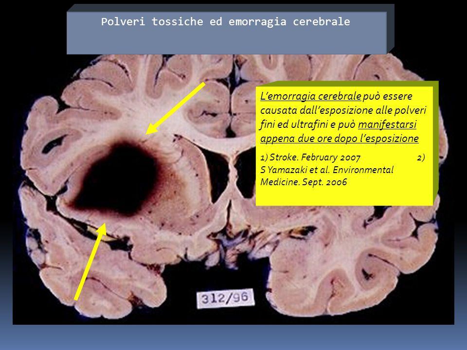 Lemorragia cerebrale può essere causata dallesposizione alle polveri fini ed ultrafini e può manifestarsi appena due ore dopo lesposizione 1) Stroke.