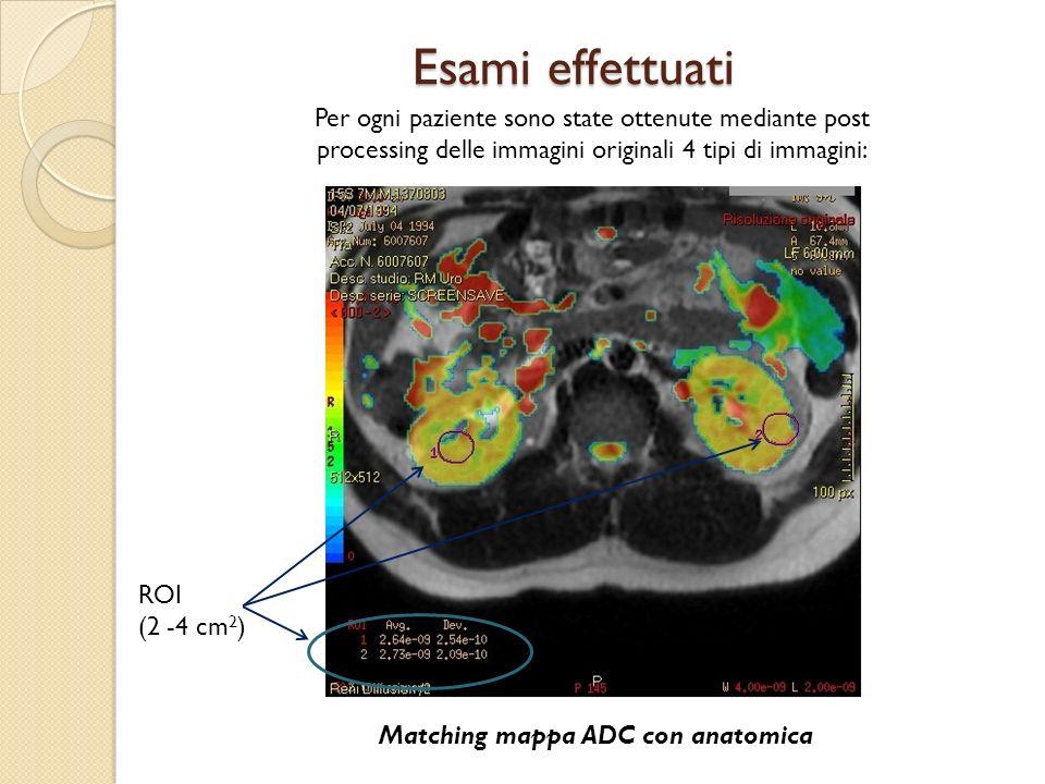 Esami effettuati Matching mappa ADC con anatomica ROI (2 -4 cm 2 ) Per ogni paziente sono state ottenute mediante post processing delle immagini origi