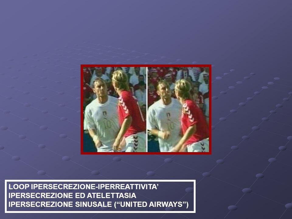 LOOP IPERSECREZIONE-IPERREATTIVITA IPERSECREZIONE ED ATELETTASIA IPERSECREZIONE SINUSALE (UNITED AIRWAYS)