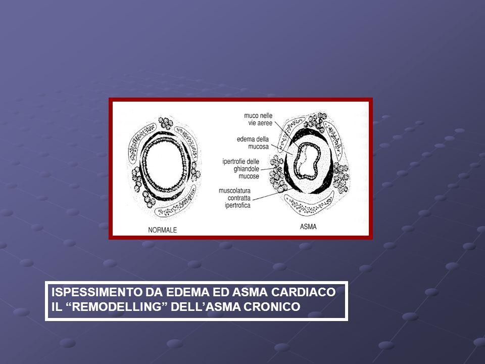 ISPESSIMENTO DA EDEMA ED ASMA CARDIACO IL REMODELLING DELLASMA CRONICO