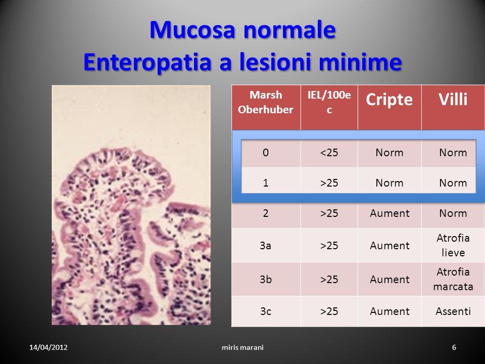 Gluten-dependent small bowel mucosal transglutaminase 2-specific IgA deposits in overt and mild enteropathy coeliac disease Koskinen et al 2008 I soggetti con celiachia potenziale hanno depositi mucosali di ac.