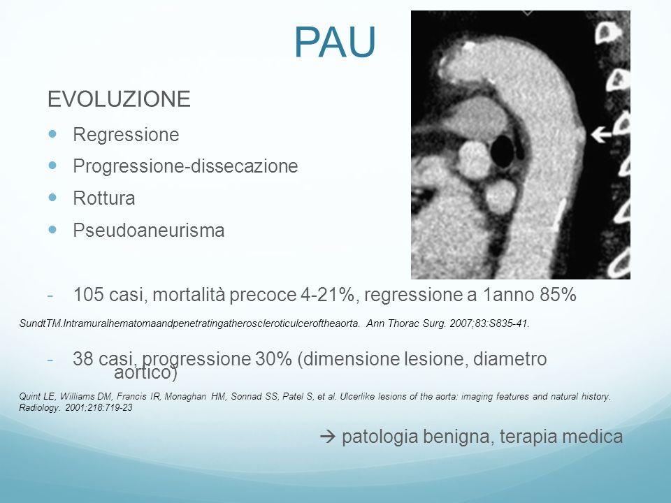 - 15 casi, 40% aumento diametro aortico - 26 casi, rottura 38%, mortalità precoce 15% (rottura diss.