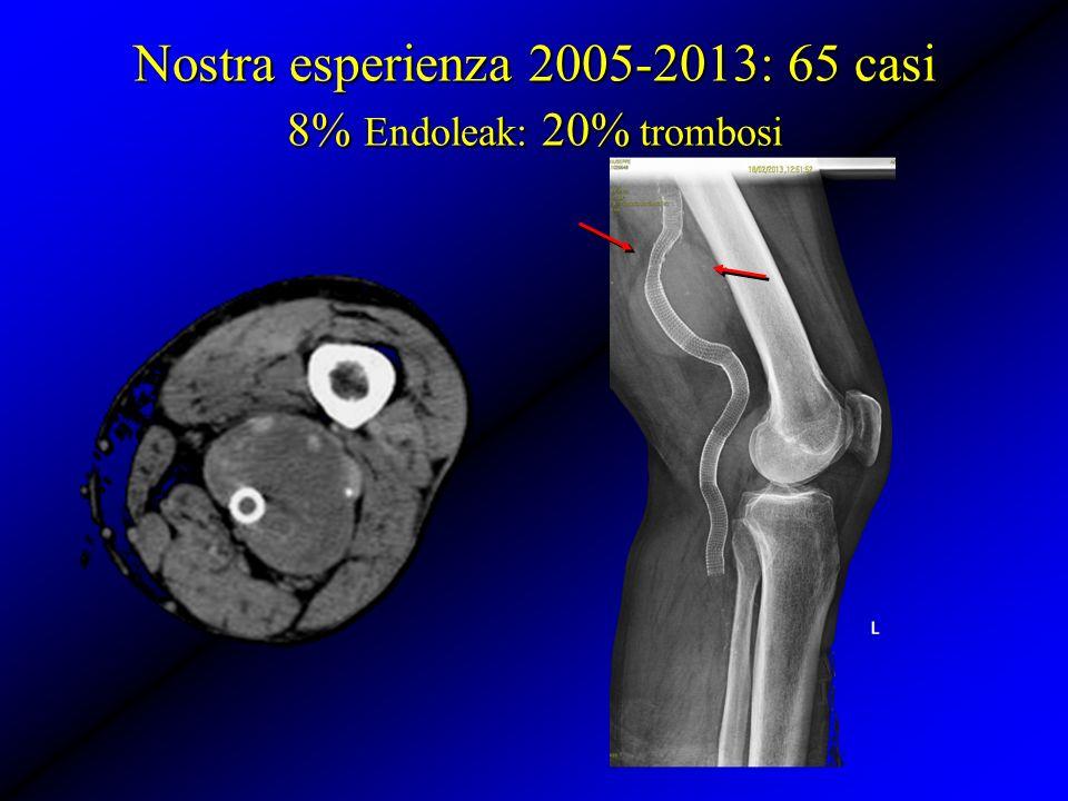 Nostra esperienza 2005-2013: 65 casi 8% Endoleak: 20% trombosi