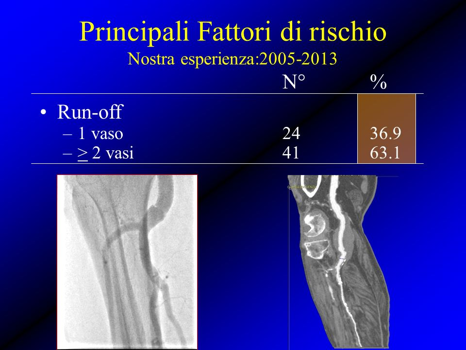 N°% Run-off –1 vaso2436.9 –> 2 vasi4163.1 Principali Fattori di rischio Nostra esperienza:2005-2013