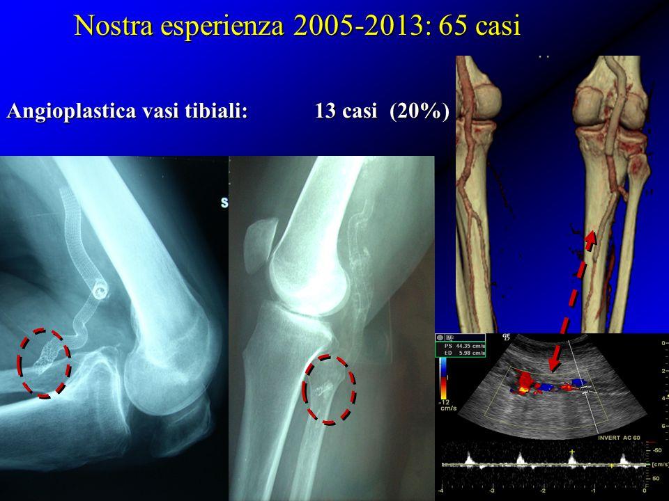 Nostra esperienza 2005-2013: 65 casi Angioplastica vasi tibiali: 13 casi (20%)