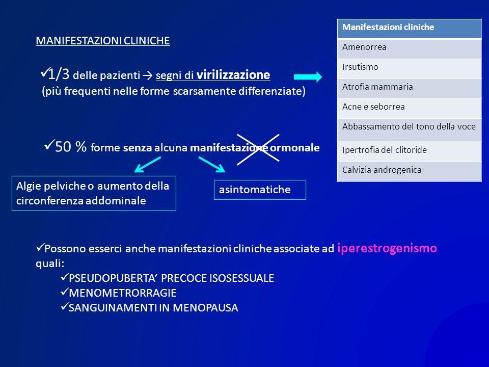 MANIFESTAZIONI CLINICHE Manifestazioni cliniche Amenorrea Irsutismo Atrofia mammaria Acne e seborrea Abbassamento del tono della voce Ipertrofia del c