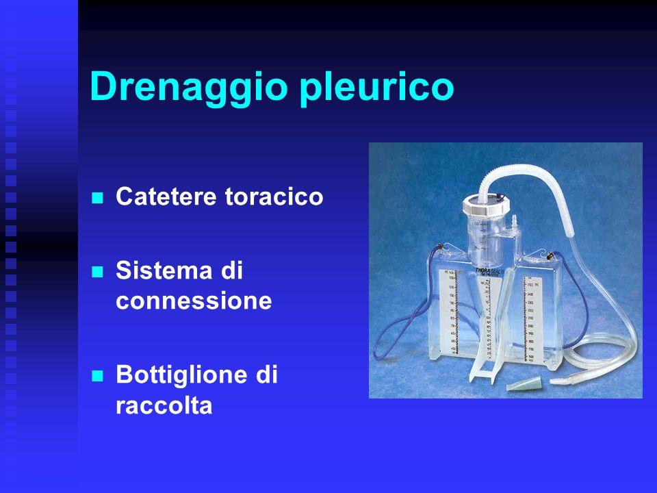 Drenaggio pleurico Catetere toracico Sistema di connessione Bottiglione di raccolta