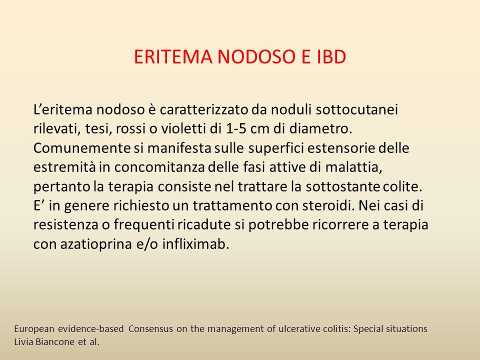 ERITEMA NODOSO E IBD Leritema nodoso è caratterizzato da noduli sottocutanei rilevati, tesi, rossi o violetti di 1-5 cm di diametro. Comunemente si ma