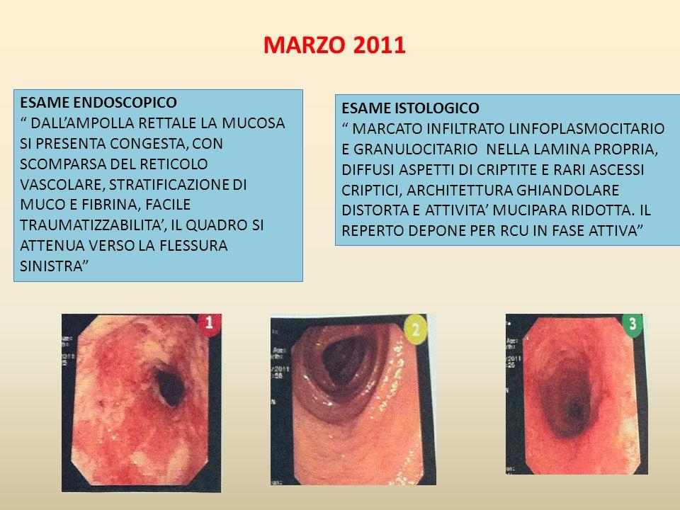 MARZO 2011 ESAME ISTOLOGICO MARCATO INFILTRATO LINFOPLASMOCITARIO E GRANULOCITARIO NELLA LAMINA PROPRIA, DIFFUSI ASPETTI DI CRIPTITE E RARI ASCESSI CR