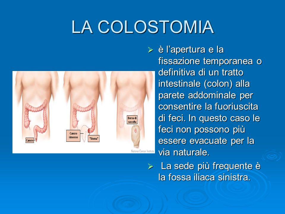 LA COLOSTOMIA è lapertura e la fissazione temporanea o definitiva di un tratto intestinale (colon) alla parete addominale per consentire la fuoriuscit