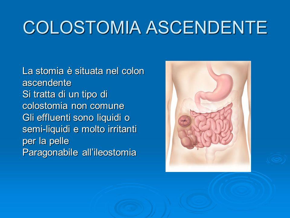 COLOSTOMIA ASCENDENTE La stomia è situata nel colon ascendente Si tratta di un tipo di colostomia non comune Gli effluenti sono liquidi o semi-liquidi