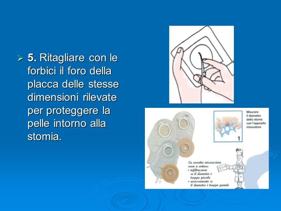 5. Ritagliare con le forbici il foro della placca delle stesse dimensioni rilevate per proteggere la pelle intorno alla stomia. 5. Ritagliare con le f