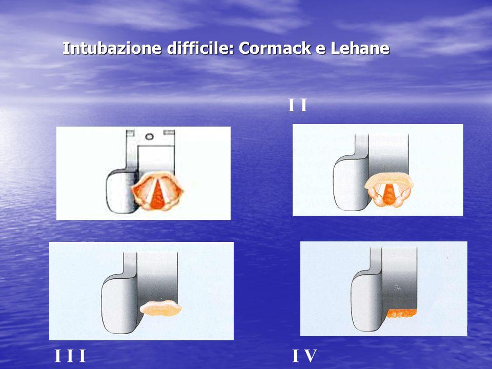Intubazione difficile: Cormack e Lehane I I I I II V