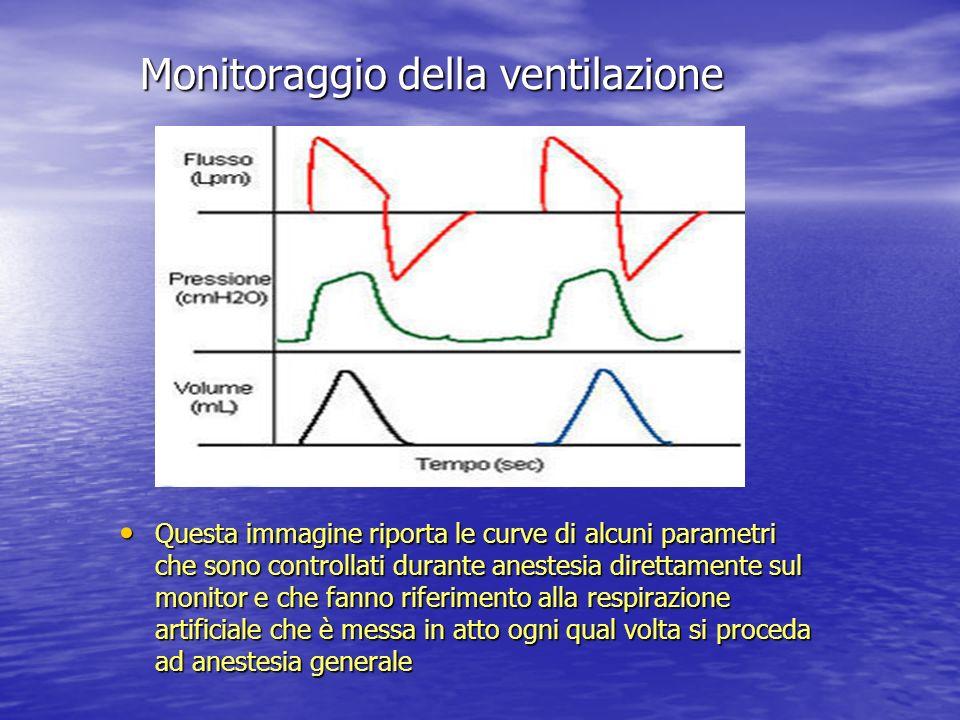Monitoraggio della ventilazione Questa immagine riporta le curve di alcuni parametri che sono controllati durante anestesia direttamente sul monitor e