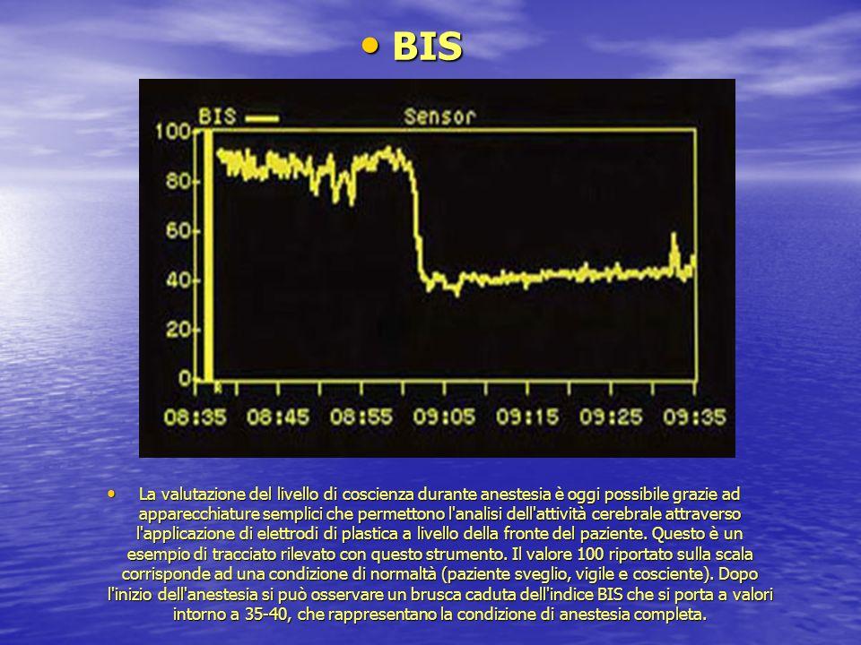 BIS BIS La valutazione del livello di coscienza durante anestesia è oggi possibile grazie ad apparecchiature semplici che permettono l'analisi dell'at