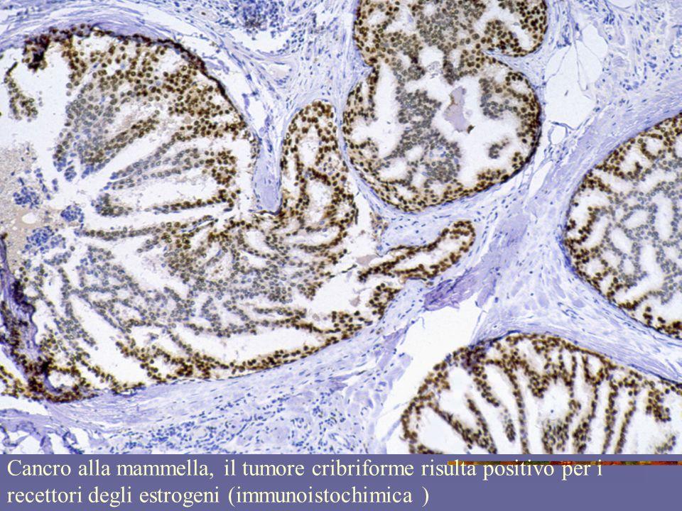 Cancro alla mammella, il tumore cribriforme risulta positivo per i recettori degli estrogeni (immunoistochimica )