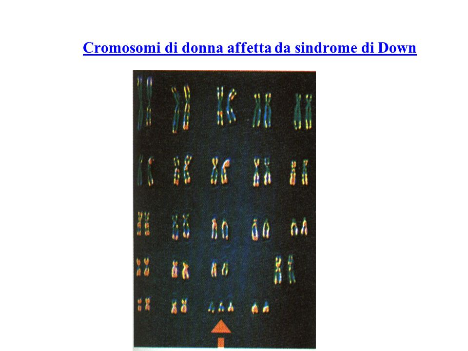 Cromosomi di donna affetta da sindrome di Down