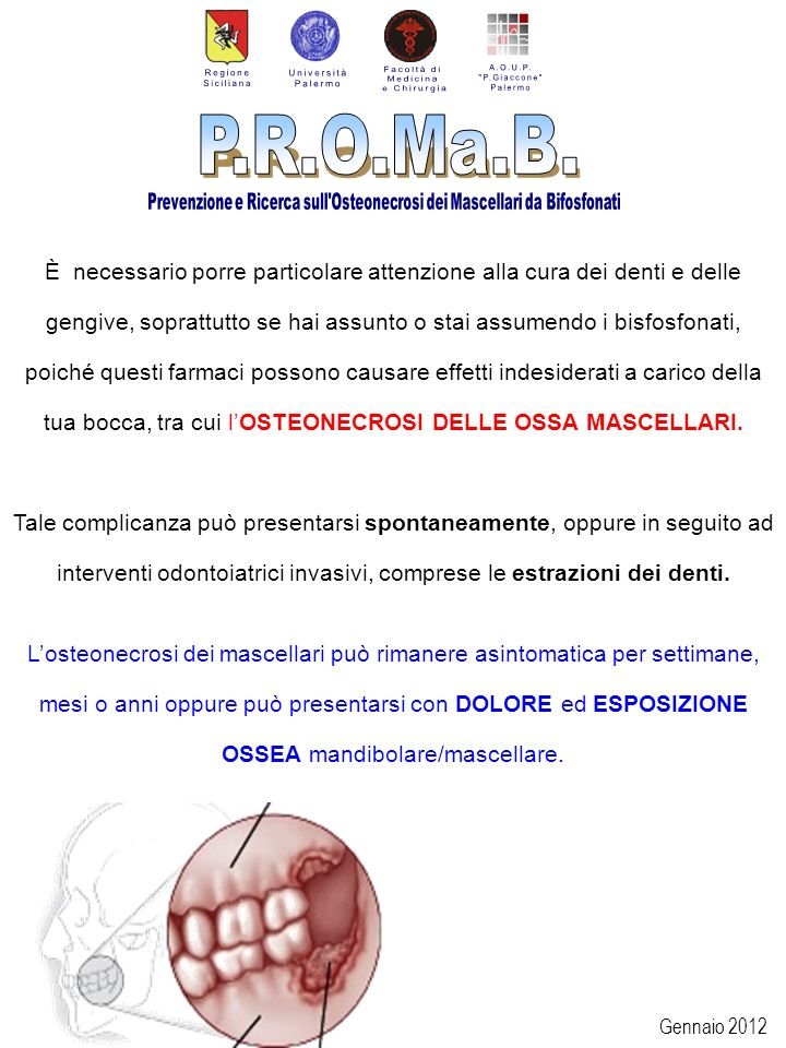 Gennaio 2012 È necessario porre particolare attenzione alla cura dei denti e delle gengive, soprattutto se hai assunto o stai assumendo i bisfosfonati