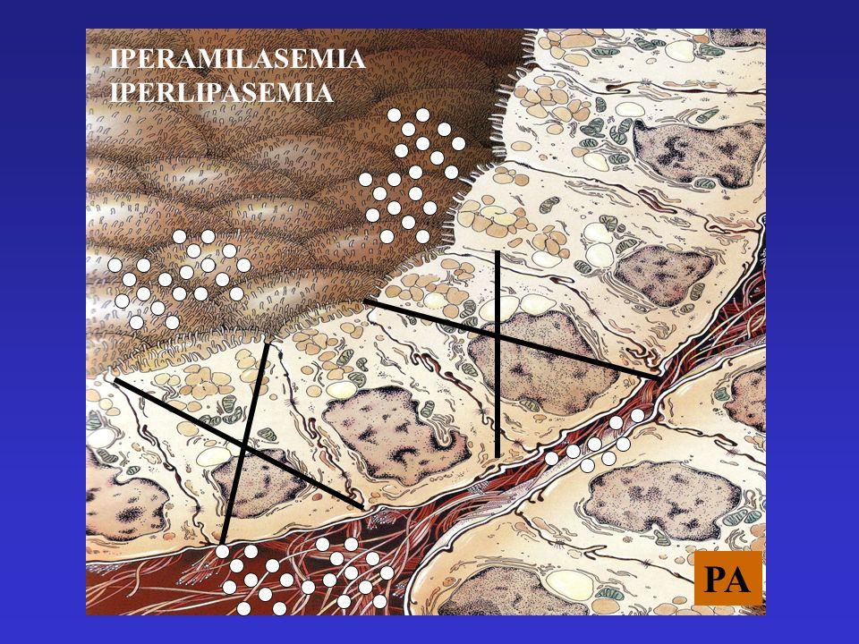 EFFETTI DELLATTIVAZIONE ENZIMATICA Autodigestione Infiammazione Chinine Complemento Radicali liberi Coagulazione Automantenimento del danno pancreatico Diffusione sistemica della malattia