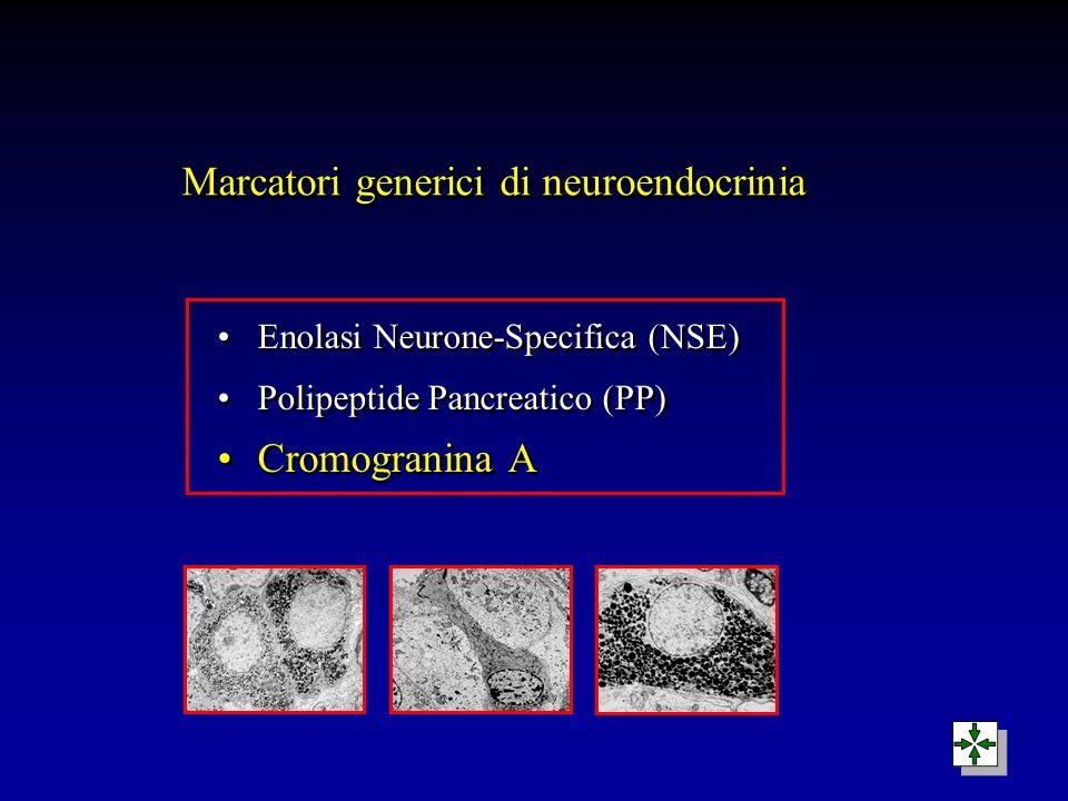 Marcatori generici di neuroendocrinia Enolasi Neurone-Specifica (NSE) Polipeptide Pancreatico (PP) Cromogranina A Enolasi Neurone-Specifica (NSE) Poli