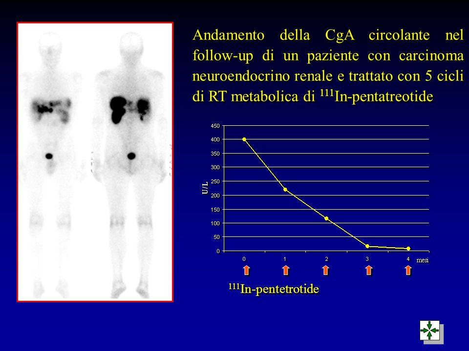 111 In-pentetrotide Andamento della CgA circolante nel follow-up di un paziente con carcinoma neuroendocrino renale e trattato con 5 cicli di RT metab