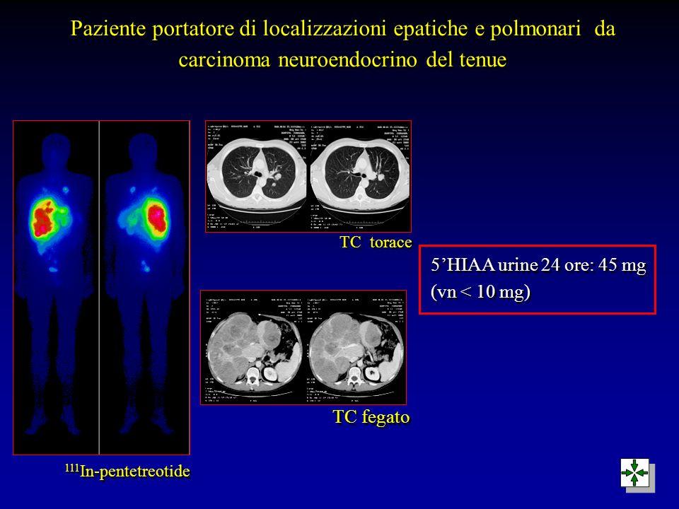 Paziente portatore di localizzazioni epatiche e polmonari da carcinoma neuroendocrino del tenue 111 In-pentetreotide TC fegato TC torace 5HIAA urine 2