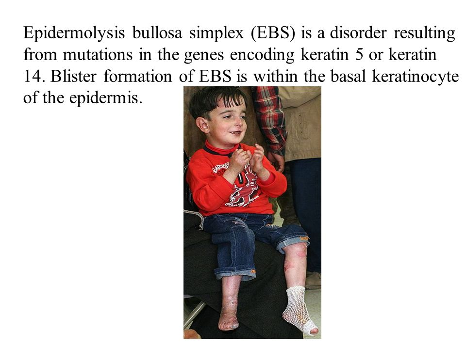 Epidermolysis bullosa simplex (EBS) is a disorder resulting from mutations in the genes encoding keratin 5 or keratin 14. Blister formation of EBS is