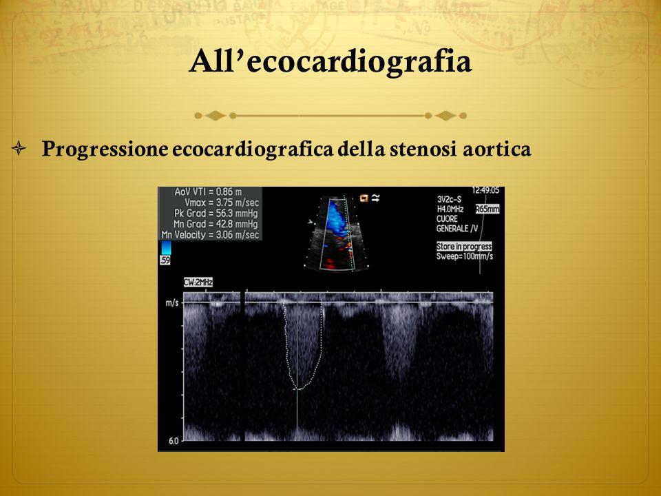 Allecocardiografia Progressione ecocardiografica della stenosi aortica