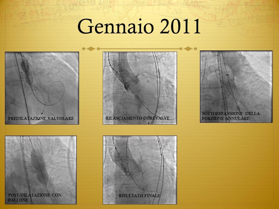 Gennaio 2011 PREDILATAZIONE VALVOLARE RILASCIAMENTO COREVALVE SOTTOESPANSIONE DELLA PORZIONE ANNULARE POST-DILATAZIONE CON PALLONE RISULTATO FINALE