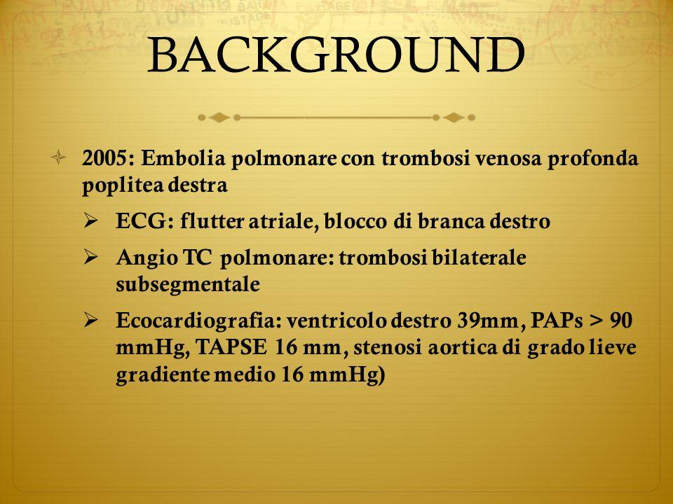 BACKGROUND 2005: Embolia polmonare con trombosi venosa profonda poplitea destra ECG: flutter atriale, blocco di branca destro Angio TC polmonare: trom