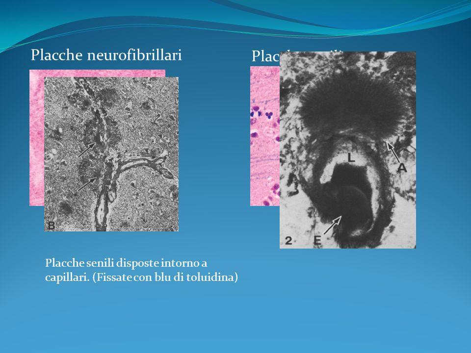Placche neurofibrillari Placche senili Placche senili disposte intorno a capillari. (Fissate con blu di toluidina)