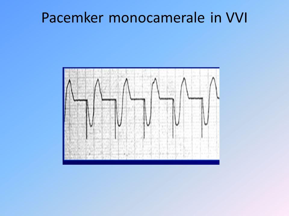 Pacemker monocamerale in VVI