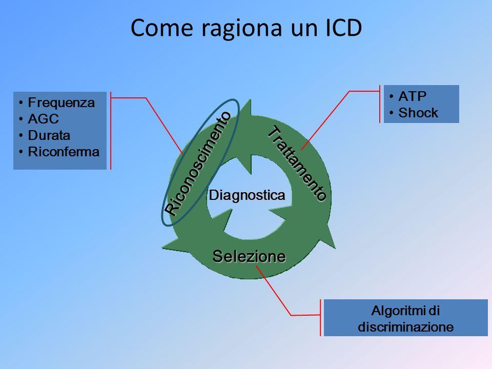 Riconoscimento Selezione Trattamento Diagnostica Come ragiona un ICD Frequenza AGC Durata Riconferma ATP Shock Algoritmi di discriminazione