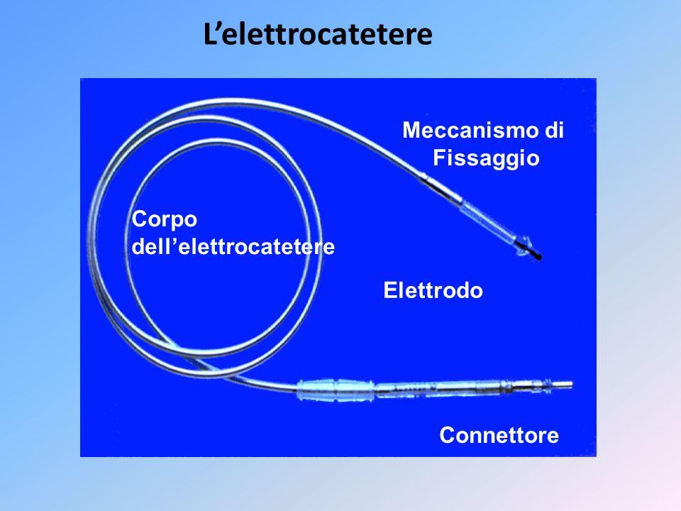 Lelettrocatetere Connettore Elettrodo Corpo dellelettrocatetere Meccanismo di Fissaggio