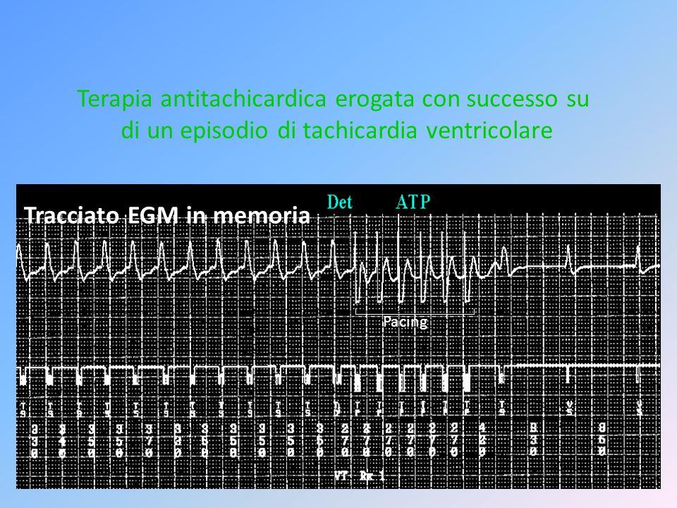 Tracciato EGM in memoria Pacing Terapia antitachicardica erogata con successo su di un episodio di tachicardia ventricolare