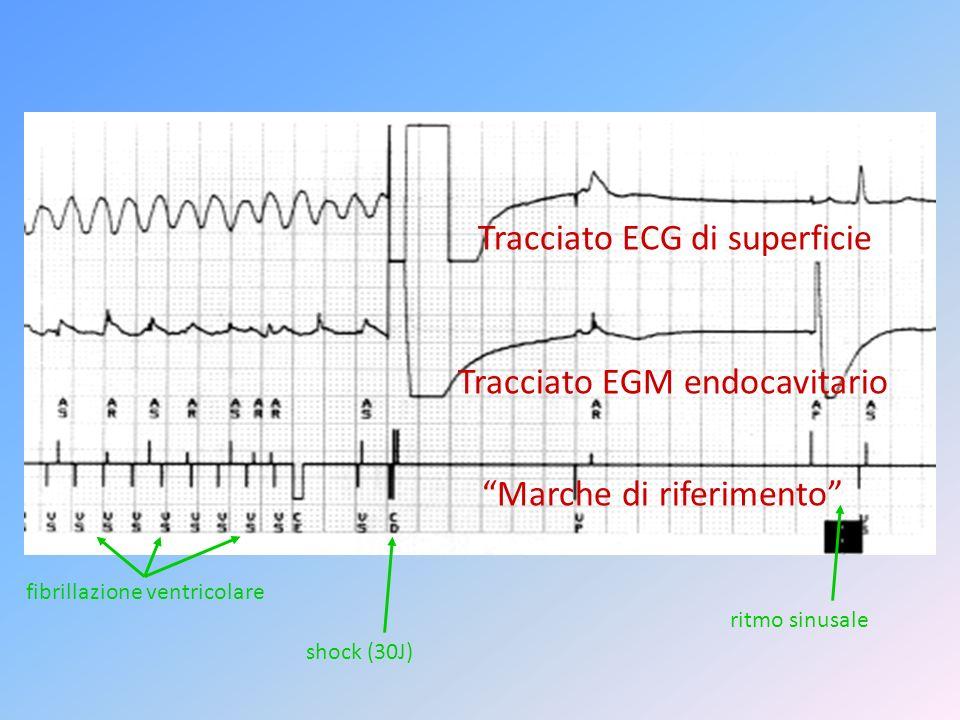 Tracciato ECG di superficie Tracciato EGM endocavitario Marche di riferimento fibrillazione ventricolare shock (30J) ritmo sinusale