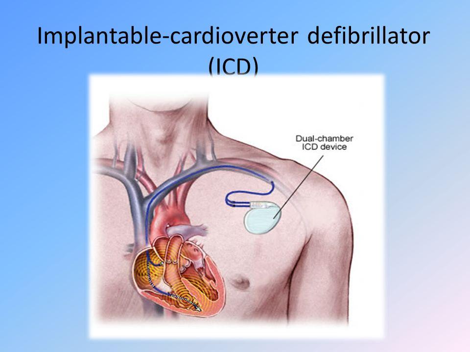 Implantable-cardioverter defibrillator (ICD)