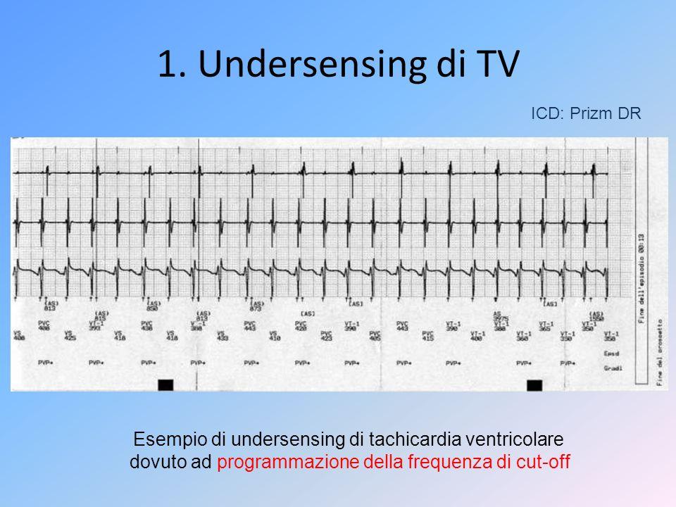ICD: Prizm DR Esempio di undersensing di tachicardia ventricolare dovuto ad programmazione della frequenza di cut-off 1. Undersensing di TV