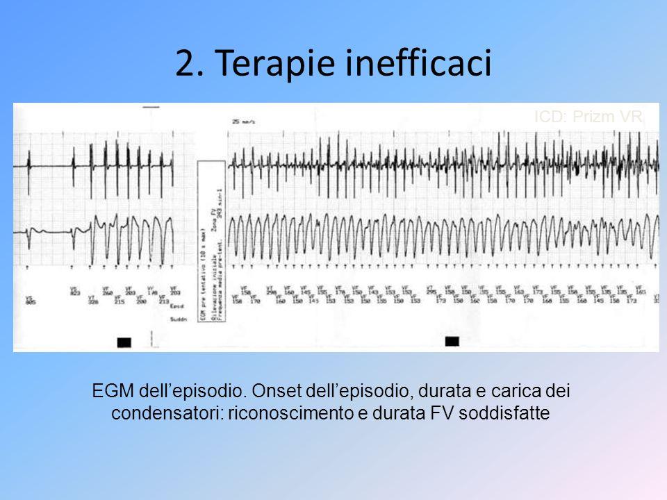 ICD: Prizm VR EGM dellepisodio. Onset dellepisodio, durata e carica dei condensatori: riconoscimento e durata FV soddisfatte 2. Terapie inefficaci